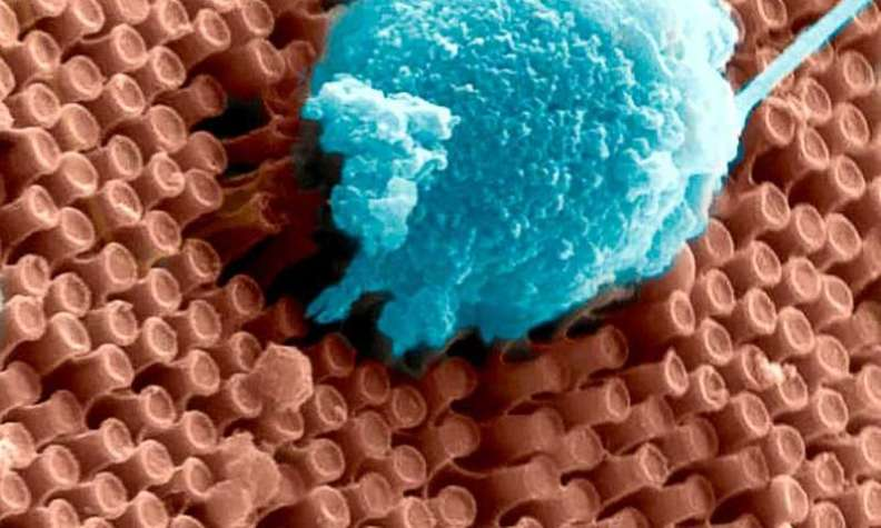 New nano-implant could one day help restore sight