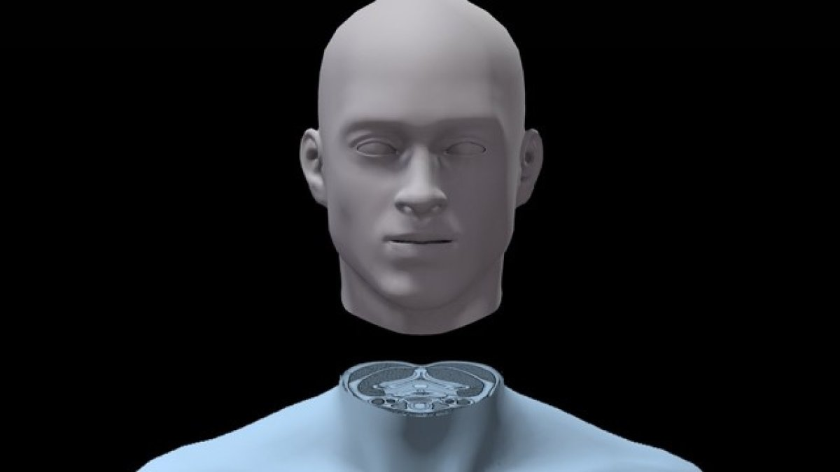 No, there has not been a successful human head transplant